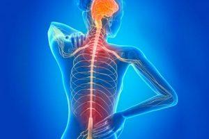 esclerosis multiple tratamiento